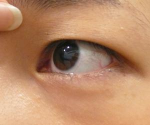 目の近くのほくろをレーザー除去