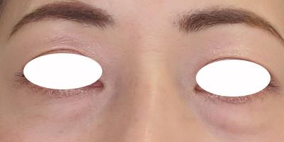 目元のたるみレーザー治療