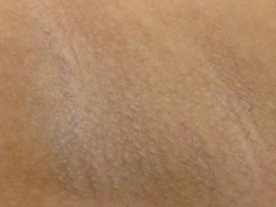 armpits_hair_removal_aft_up_20120219.jpg
