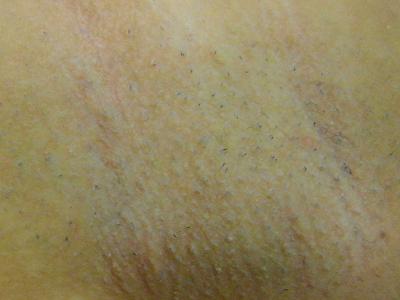 armpits_hair_removal_up_20120219.jpg