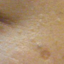 稗粒腫治療前