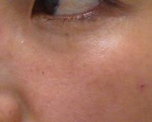 目の下にヒアルロン酸注射画像