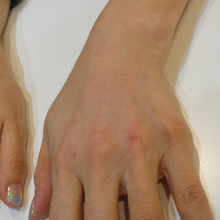 手の老化治療後