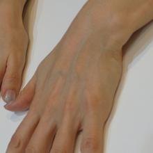 手の老化治療前のサムネール画像