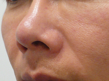鼻を狭く高くする注射治療後