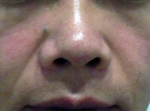 ヒアルロン酸で鼻を高く