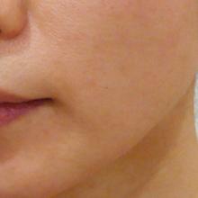 顔の脂肪溶解治療後