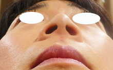 鼻をヒアルロン酸で細くする