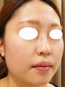 鼻とみけんヒアルロン酸注射直後