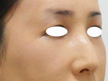 目の上のしわを治療のサムネール画像