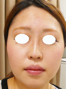 鼻にヒアルロン酸を注射画像