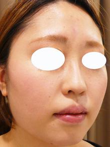 鼻筋とみけんヒアルロン酸注射前画像