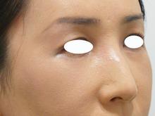 目の上のくぼみのサムネール画像