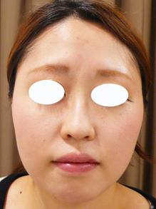 鼻のヒアルロン酸注射画像