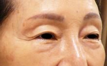 眼瞼下垂画像