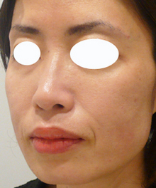 ヒアルロン酸注射後の画像