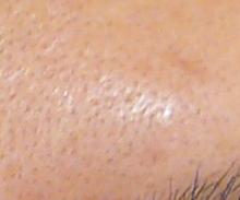 毛穴開き治療後写真