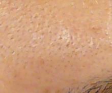 毛穴開き治療前写真