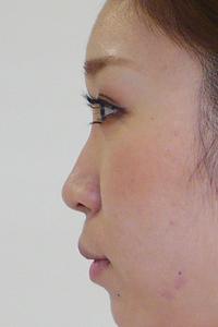 鼻にヒアルロン酸注入横顔写真