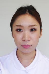 鼻のヒアルロン酸注射前の写真