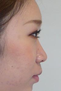 鼻にヒアルロン酸注射横顔