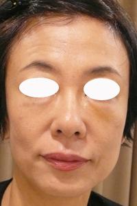目の下のくま治療後