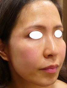 頬のたるみにヒアルロン酸注入