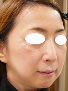 法令線と頬のたるみをヒアルロン酸で治療