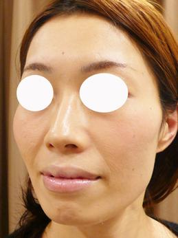 頬とこめかみの痩せ治療