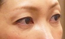 くぼみ目をヒアルロン酸注射で治療