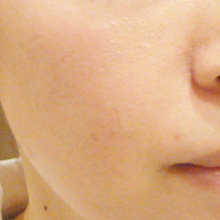 prp治療後肌写真のサムネール画像