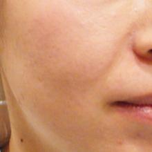 prp治療前の肌のサムネール画像