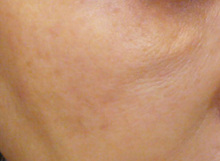 水光注射治療前の写真