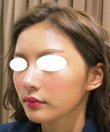 モデルさんの様な方のヒアルロン酸注射のサムネール画像
