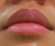 唇のほくろレーザー治療後の写真
