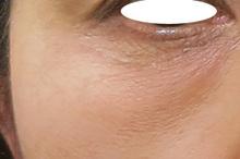 目の下のくまをPRPで治療のサムネール画像