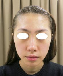 額の凹凸をヒアルロン酸で丸く