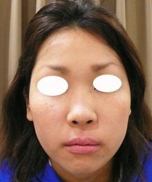 鼻筋のプチ整形前写真