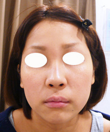 ヒアルロン酸で鼻筋を高く