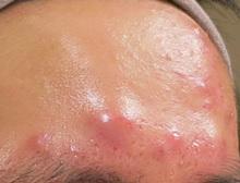 額のニキビ治療