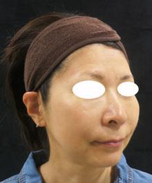 たるみ治療前の写真のサムネール画像