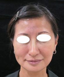 鼻先を尖らせて上に向ける治療のサムネール画像