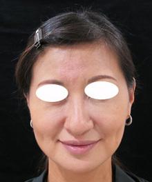 下を向いた鼻のサムネール画像