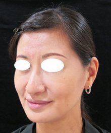 鼻先をスッキリさせる糸治療前の写真