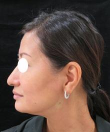 鼻先を上に向ける切らない糸治療