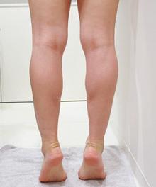 ふくらはぎの筋肉が発達しているのサムネール画像