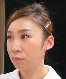 鼻の糸形成治療後の写真