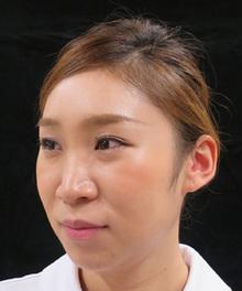鼻のプチ整形前の写真