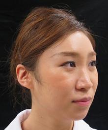 鼻のプチ整形前