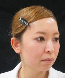 3Dリフト治療前の写真
